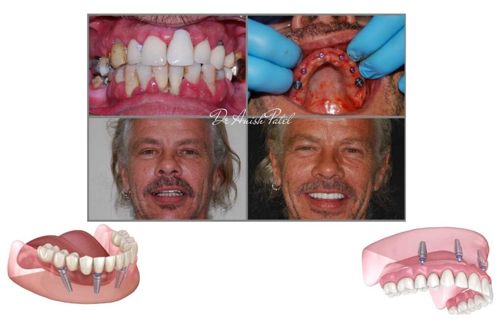 all on 4 teeth in a day